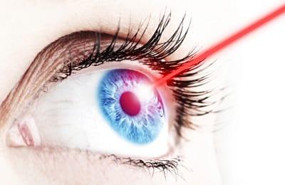Rock-Hill-Eye-Center-Laser-Eye-Surgery.jpg (400×260)