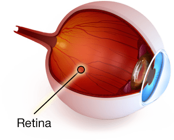 Rock-Hill-Eye-Center-Retina