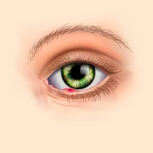 Rock-Hill-Eye-Center-Skin-Cancer